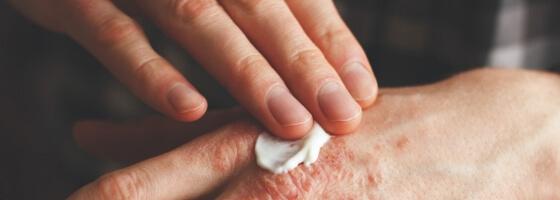 Kada ir kaip tepami vaistai sergant atopiniu dermatitu - www.atopinis.lt