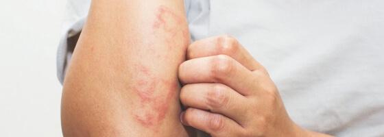 Kaip numalšinti odos niežėjimą - atopinis.lt